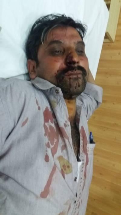 جلالپور بھٹیاں میں قبضہ مافیا کے سرغنہ نےظلم کی داستان رقم کر دی ، شہری کو شدید تشدد کا نشانہ بناڈالا