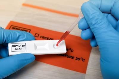 کورونا وائرس کا علاج:یونیورسٹی آف ہیلتھ سائنسز نے مصنوعی اینٹی باڈیز تیار کرلیں
