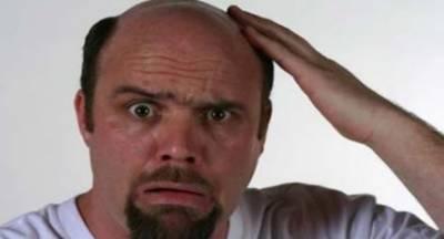 گنجے مردوں میں کورونا سے متاثر ہونے کے خطرات زیادہ ہوتے ہیں، نئی تحقیق میں انکشاف